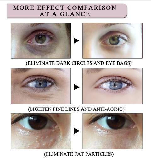 15ml Eye Essence Cream Herb Anti-Wrinkle Remover Dark Circle Anti Aging Eye Care