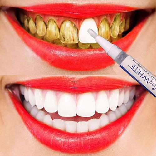 3D White Teeth Whitening Pen Tooth Gel Whitener Bleach Remove Stains Oral Hygiene Instant Smile Pro Nano Teeth Whitening Kit Hot with video review shared