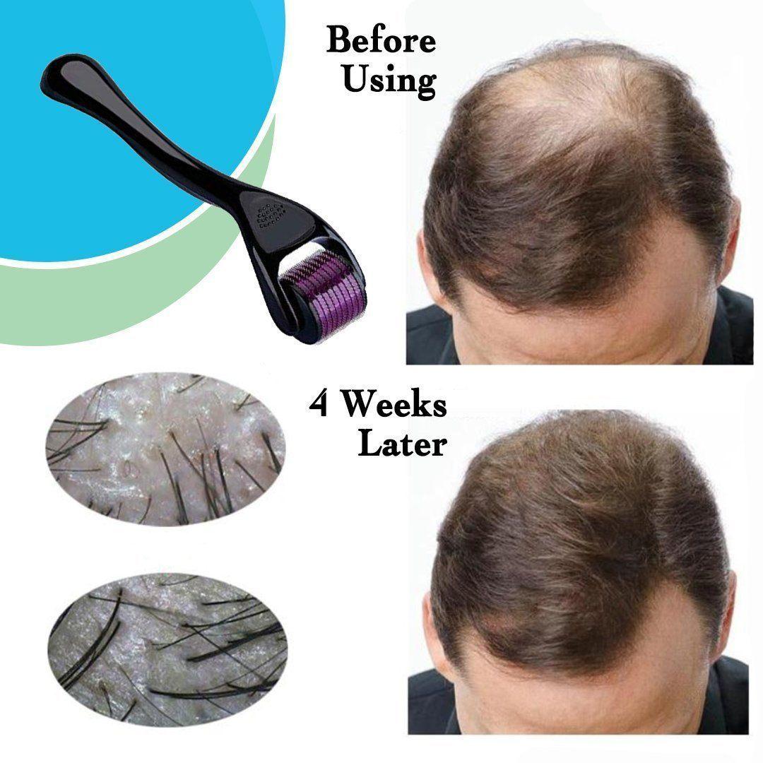 Derma Roller 540 Titanium Micro Needles for Beard Growth and Hair Loss Treatment 0.5mm