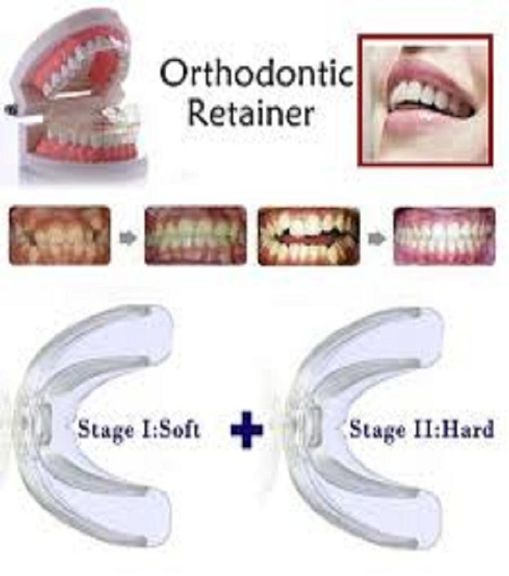 (Soft + Hard) 2 Stages Tooth Orthodontic Braces Appliance Dental Braces Silicone Alignment Trainer Teeth Retainer Oral Hygiene Teeth Alignment