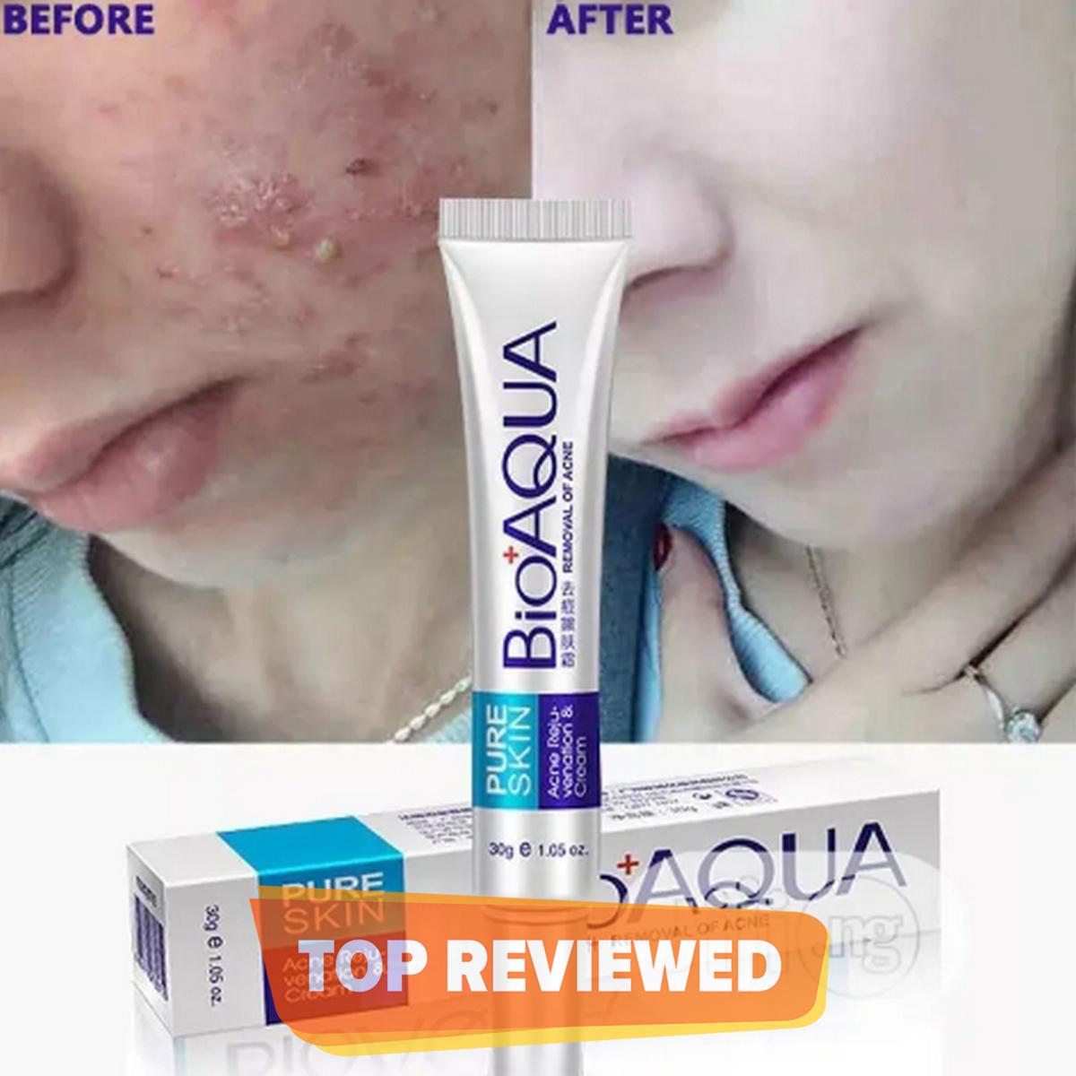 Unisex Original BioAqua Acne Cream For All Skin Order Now